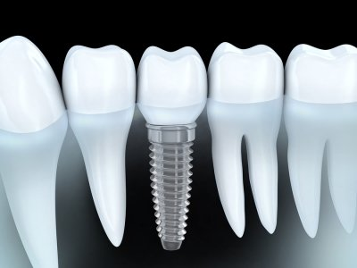 Implant Dentistry Hazlet